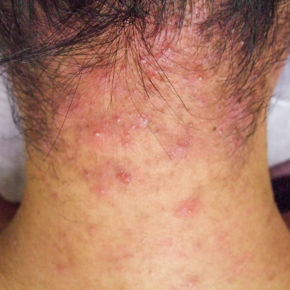 首 ニキビ 原因 デコルテ、顎下首ニキビの原因と対策を部位別解説!